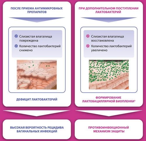 норма и патология при бактериальном вагинозе