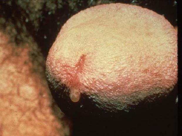 Микоплазмоз у мужчин: фото