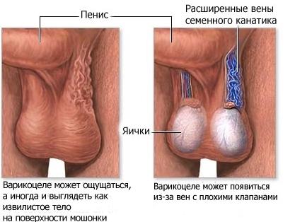 Проктолог член яичко
