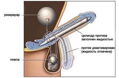 инъекции для лечения эректильной дисфункции
