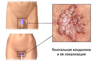 Папилломавирусная инфекция у мужчин лечение