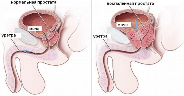 Причины хронического простатита у мужчин