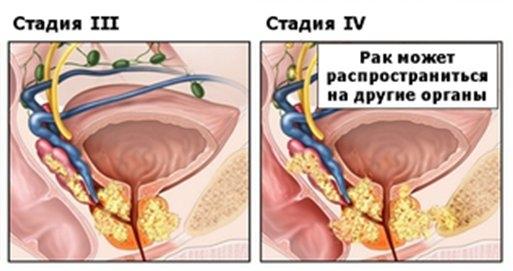 Симптомы простатита на головке