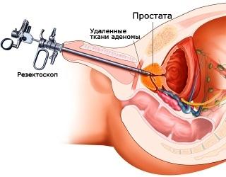 Конгестивный хронический простатит у