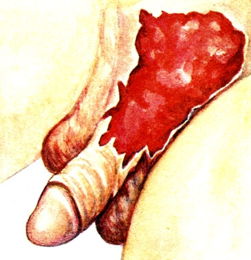 Открытые травмы полового члена