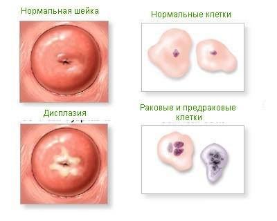 Виды заболеваний шейки матки