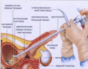 Кровь сперме после биопсии простаты