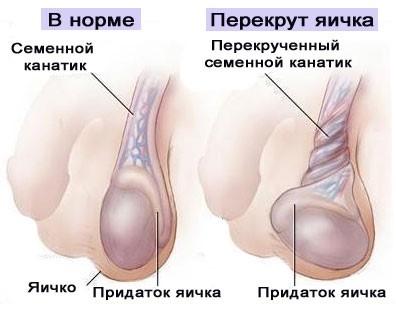 Болит яичко у мужчин (слева, справа) - что делать и что это может быть