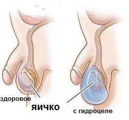 Болит яичко у мужчины