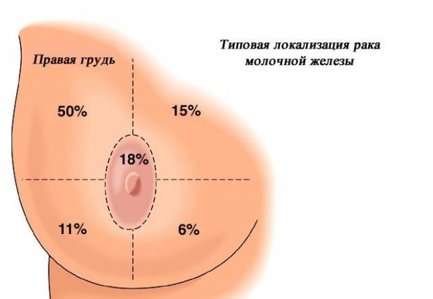 Статистика рака молочной железы