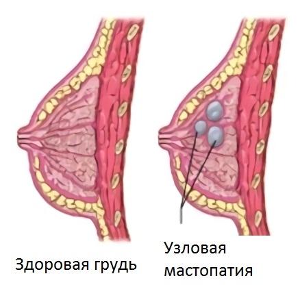 Узловая фиброзно-кистозная мастопатия молочной железы