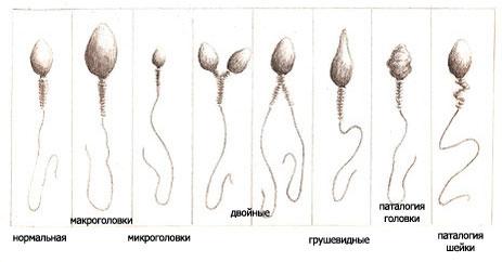 Расшифровать спермограмму