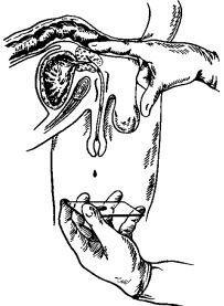 Простатит симптомы хронический