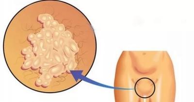 Папилломы на интимных местах у женщин симптомы