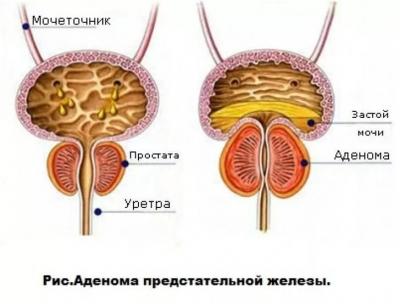 Кровь при мочеиспускании у мужчин