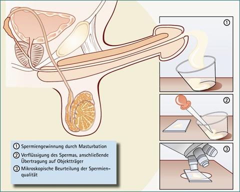 Лабораторные методы диагностики мужского бесплодия