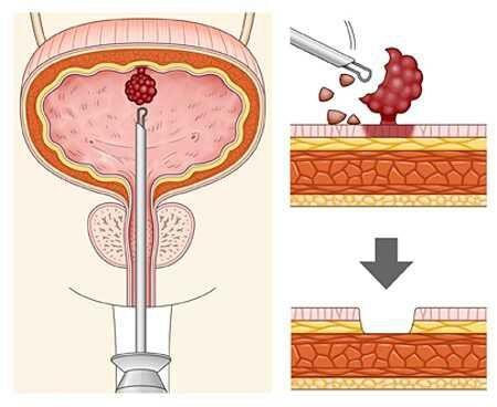 Трансуретальная резекция мочевого пузыря