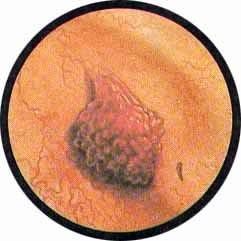 Вирус папилломы мочевого пузыря