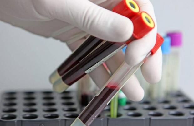 Анализ крови на ЗППП