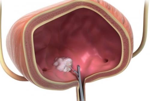 Картинки по запросу трансуретральная резекция мочевого пузыря