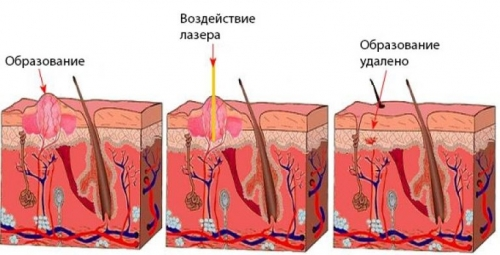 Прижигание папилломы в гинекологии