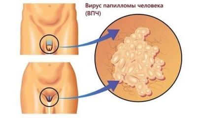 Удаление генитальных папиллом 5