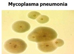 Mycoplasma hominis у мужчин
