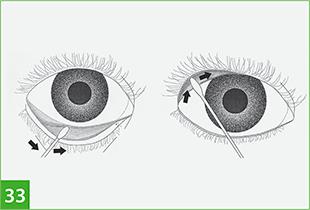 Схема забора материала на ПЦР  со слизистой глаз