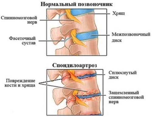 Воспаление у ребенка мочевыводящие пути лечение