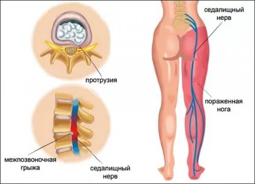 Какие мази для остеохондроза