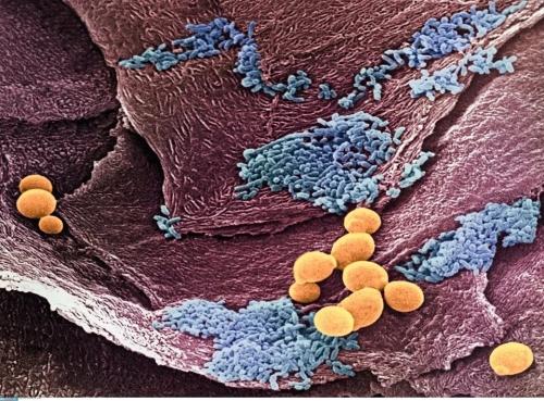 Симптомы при кандидозе кишечника у женщин