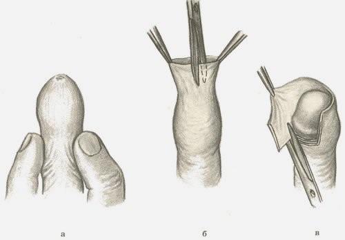 Обрезание длинного