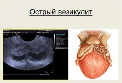 Опасные последствия простатита у мужчин
