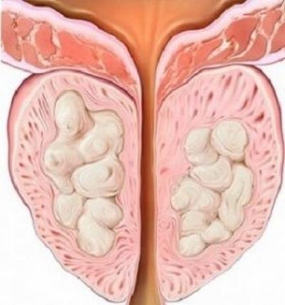Чем опасна болезнь простата для мужчин