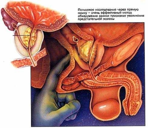 аденома предстательной железы вреден ли. секс