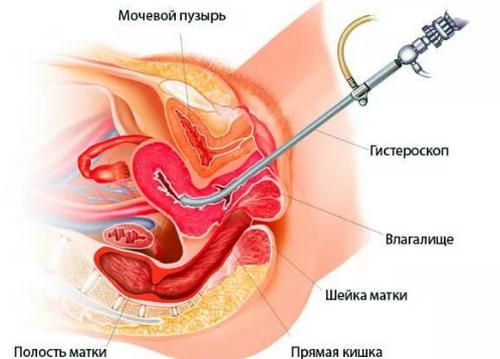Большая киста яичника (больше 4 см) чем опасна показания для операции