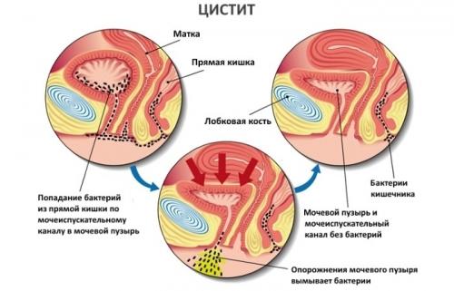 Дефлорационный цистит лечение 34