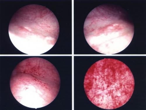 Дефлорационный цистит лечение 40