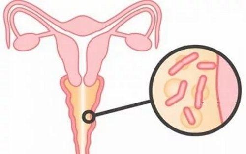 lechenie-patologicheskih-vaginalnih-videleniy