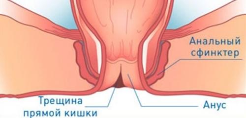 Трещины в заднем проходе симптомы