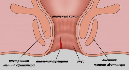 Подготовительные меры для безопасного анального секса