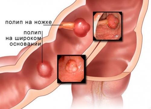 Полип прямой кишки (толстой кишки)
