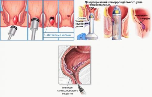 Геморроидальные узлы как лечить