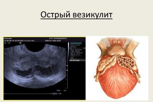диагностика простатита в челябинске