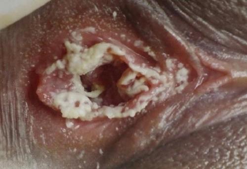 Лечение грибка во влагалище у женщин. Нестандартные решения.