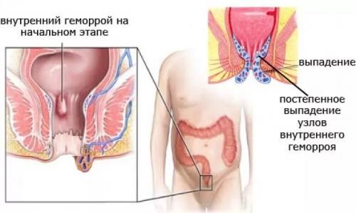 Воспаление прямой кишки зуд выделение слизи