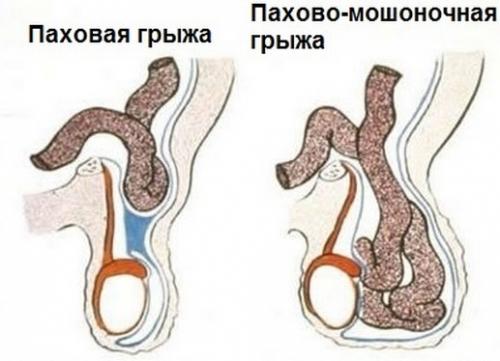 Уплотнение в яичке у мужчин 4