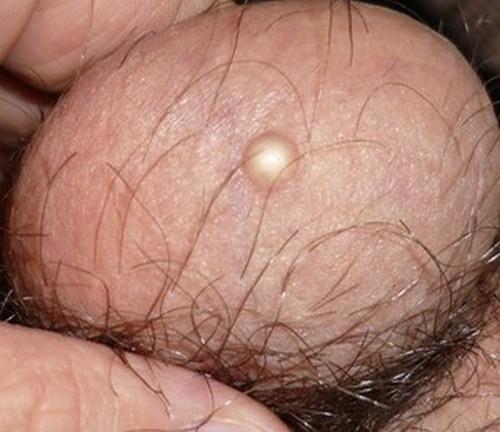 Придаток яичка уплотнен 34