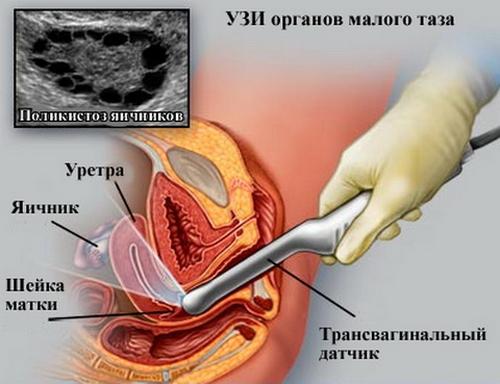 Узи матки и яичников как делают