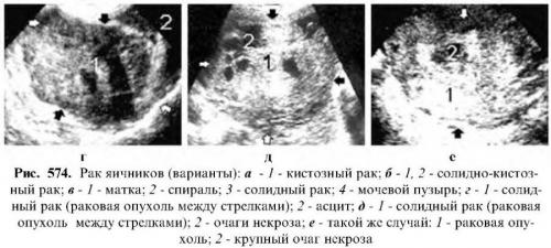 Узи яичников у женщин 42